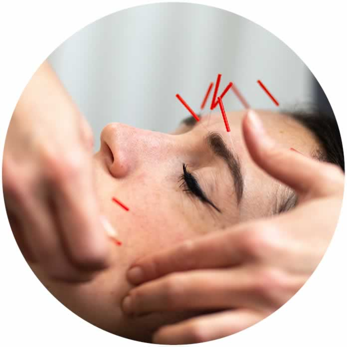 acupuncture for skin health